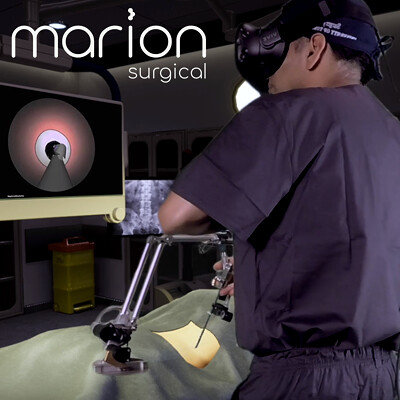 Marion Surgical VR