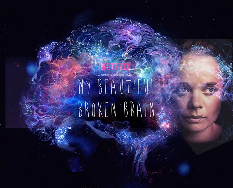 ArtStation - My Beautiful Broken Brain - Visual Effects, Almu Redondo