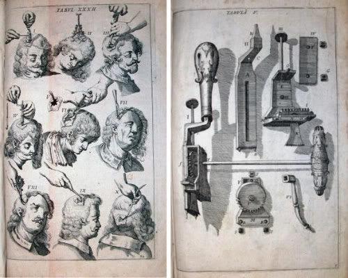 Overkill msa tumblr facebook mindspaceapocalypse trepanation scultetus 1