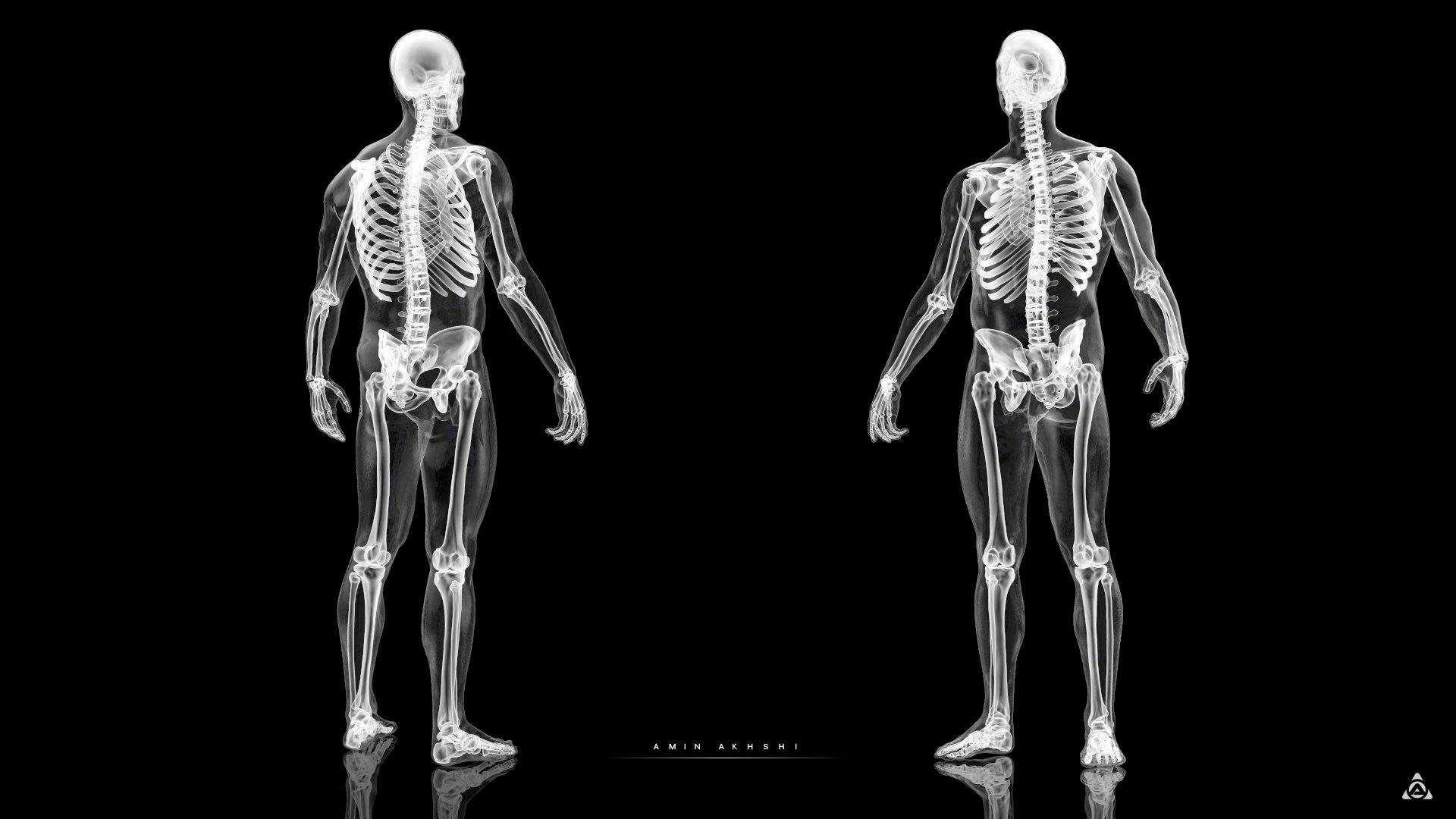 Amin akhshi anatomy x ray f b