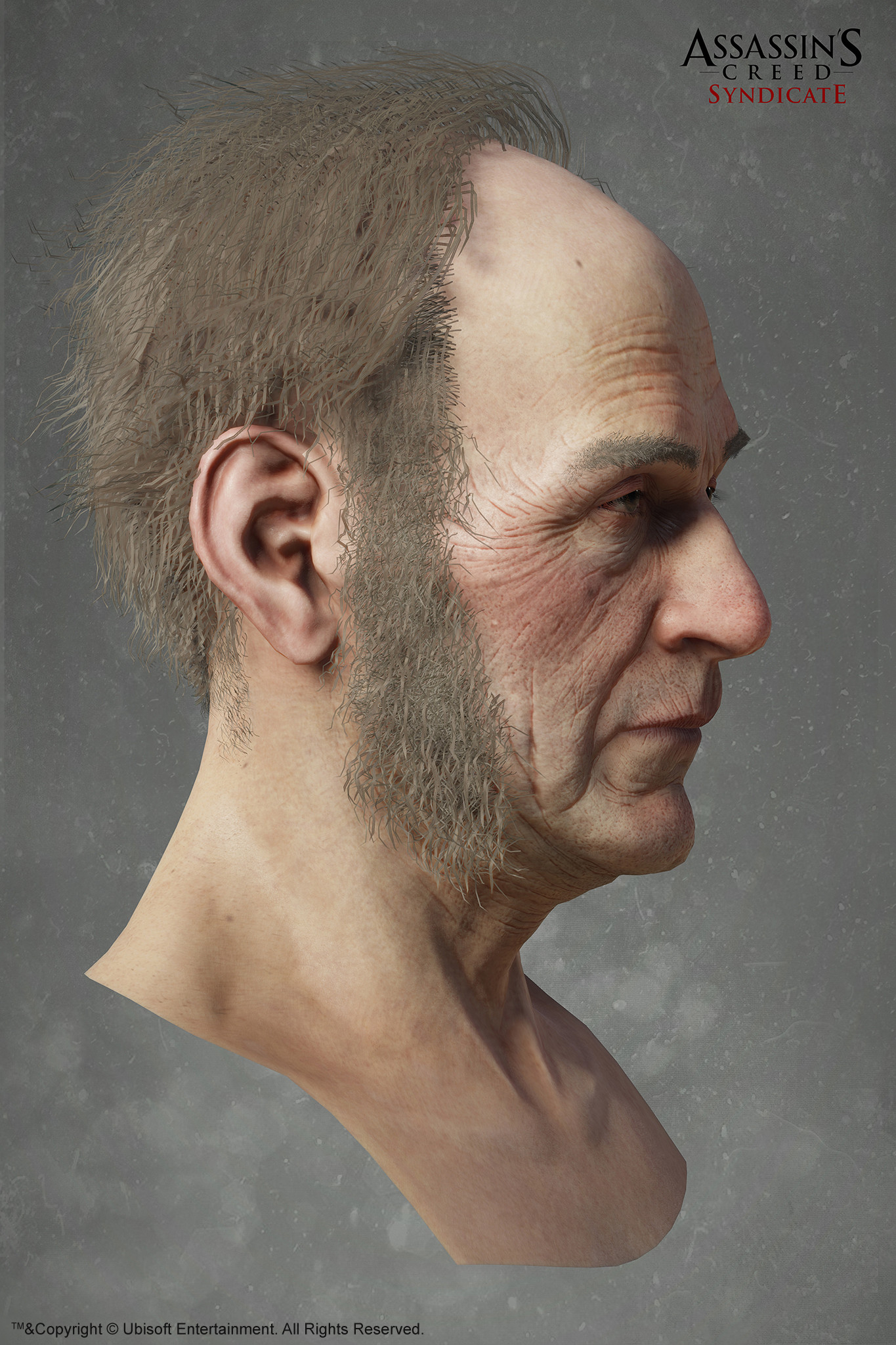 Hugues thibodeau acs davidbrewster head side