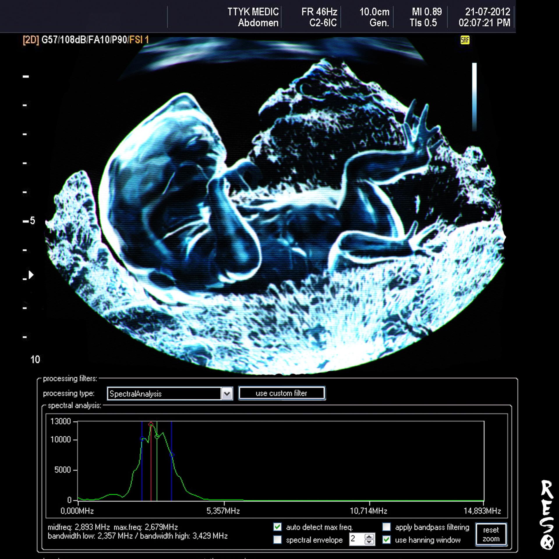 Raul eduardo sanchez osorio ultrasound v03 blue