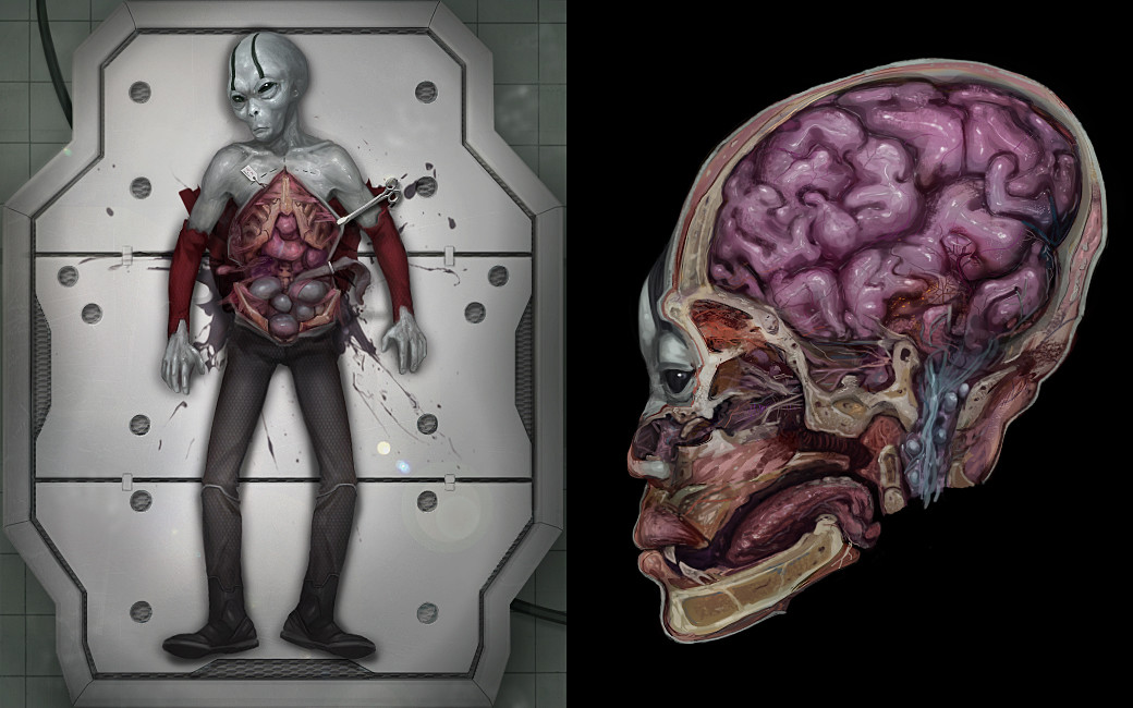Xenonauts autopsy