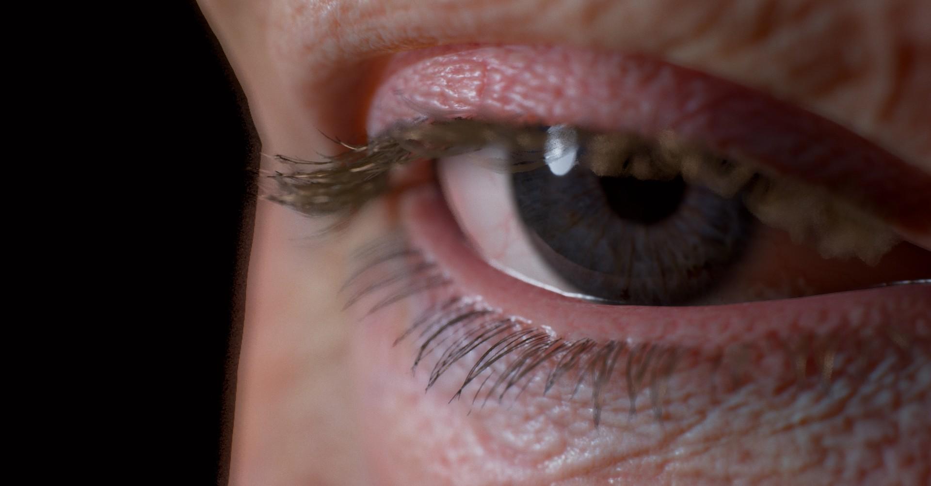 Vimal kerketta eye 3