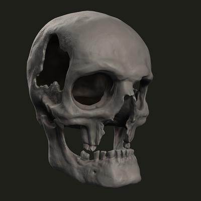 Galymzhan ashimbayev skull side