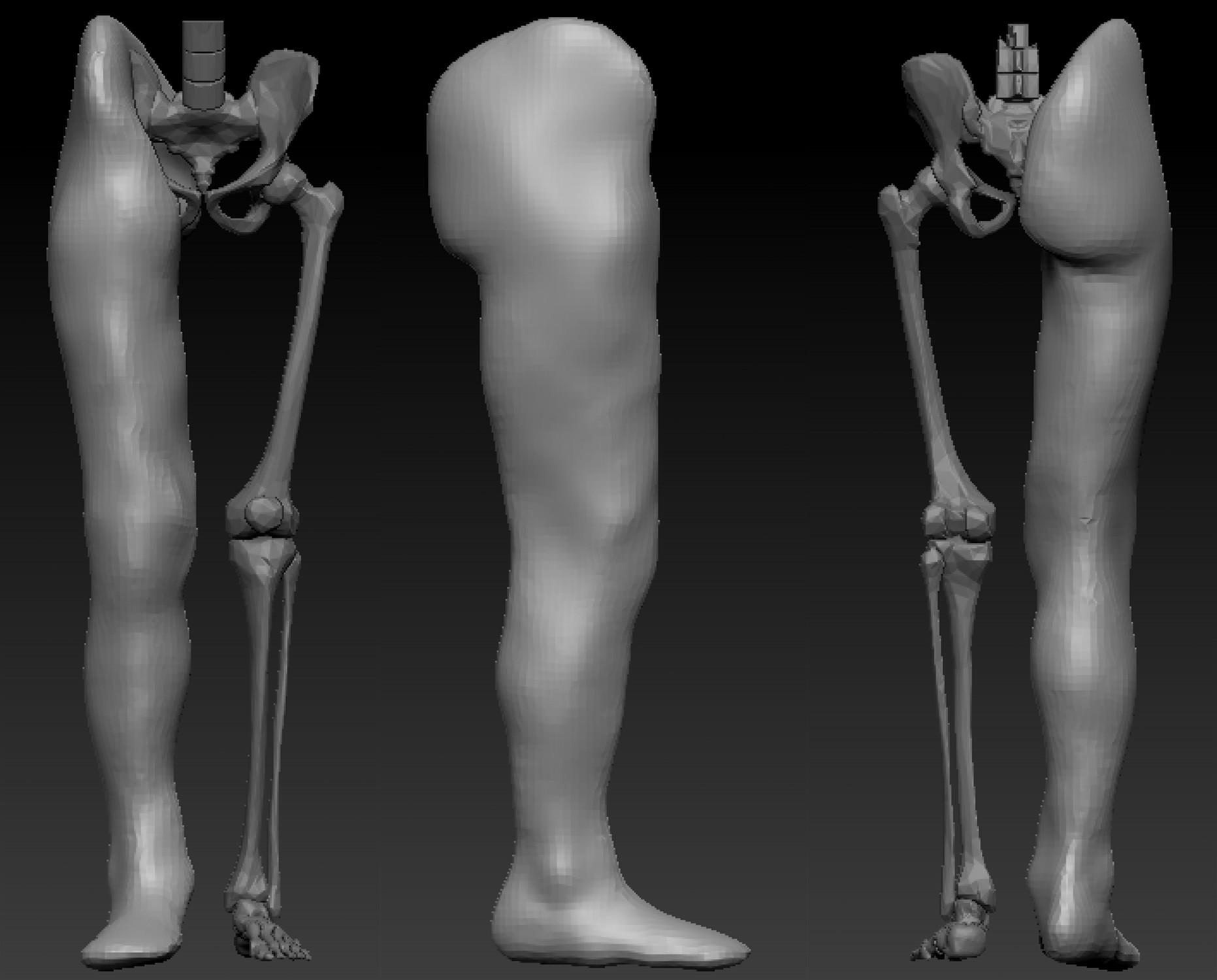 Sheryl zentz leg