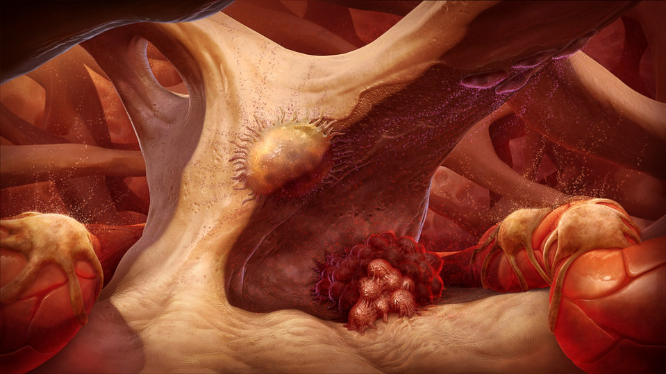 Bone Matrix: Prostate Cancer Metastasized