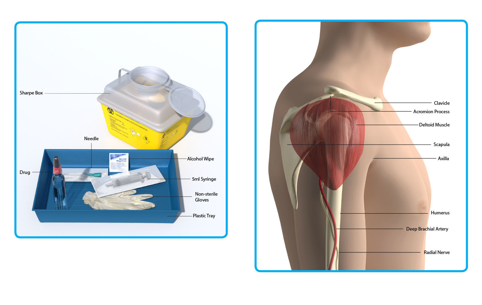 Medical Illustration for Deltoid injection