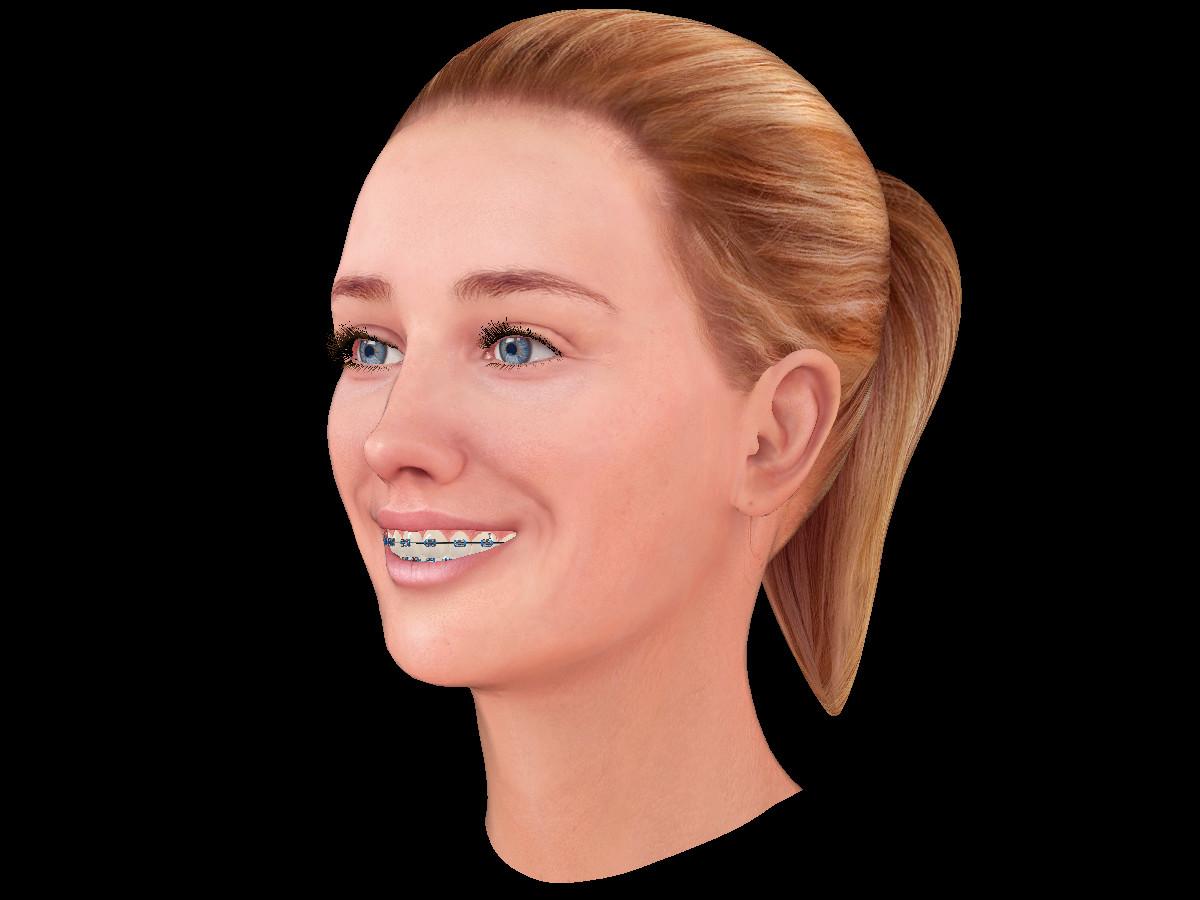 Ken calvert iva smile 3quarter