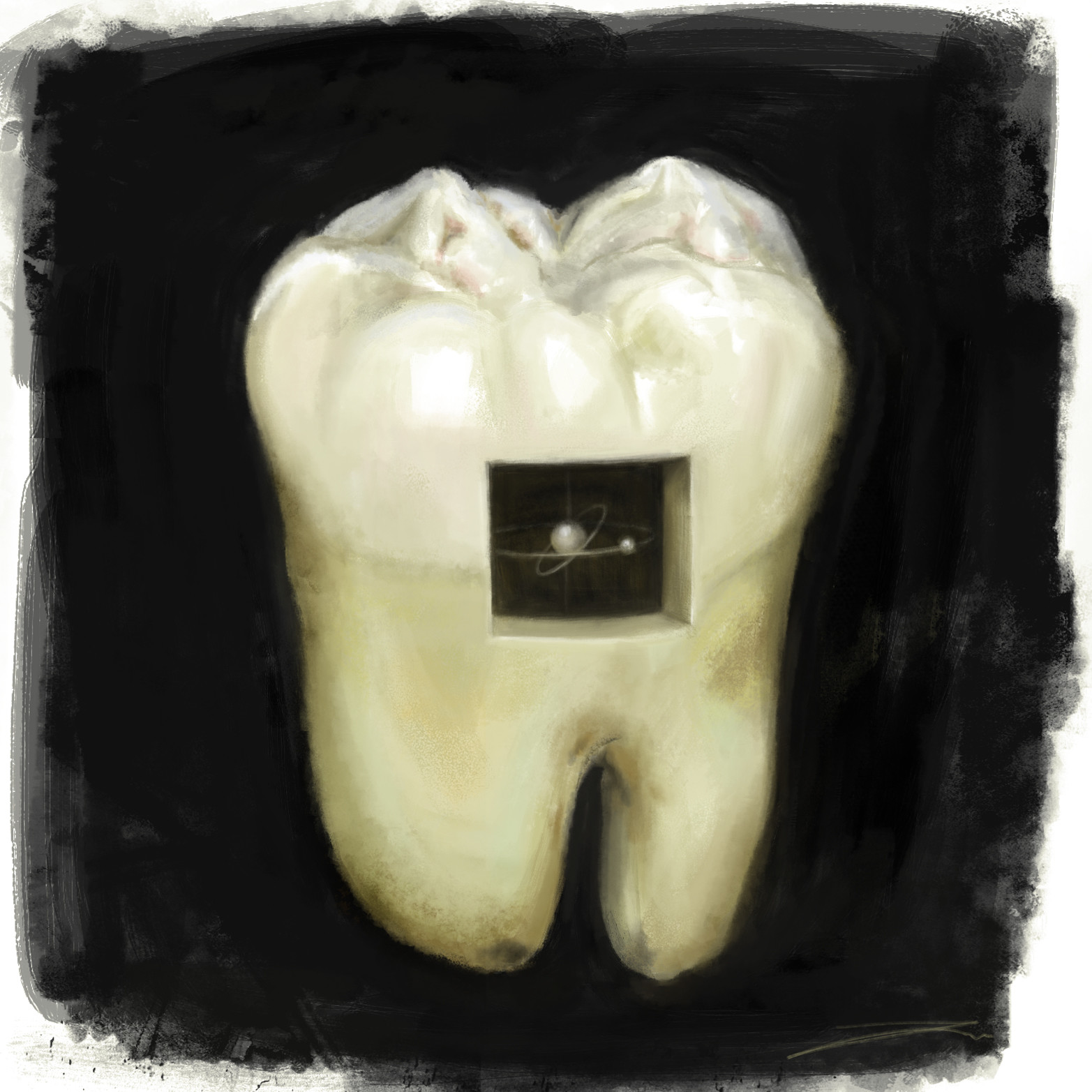 Imery watson toothdecay