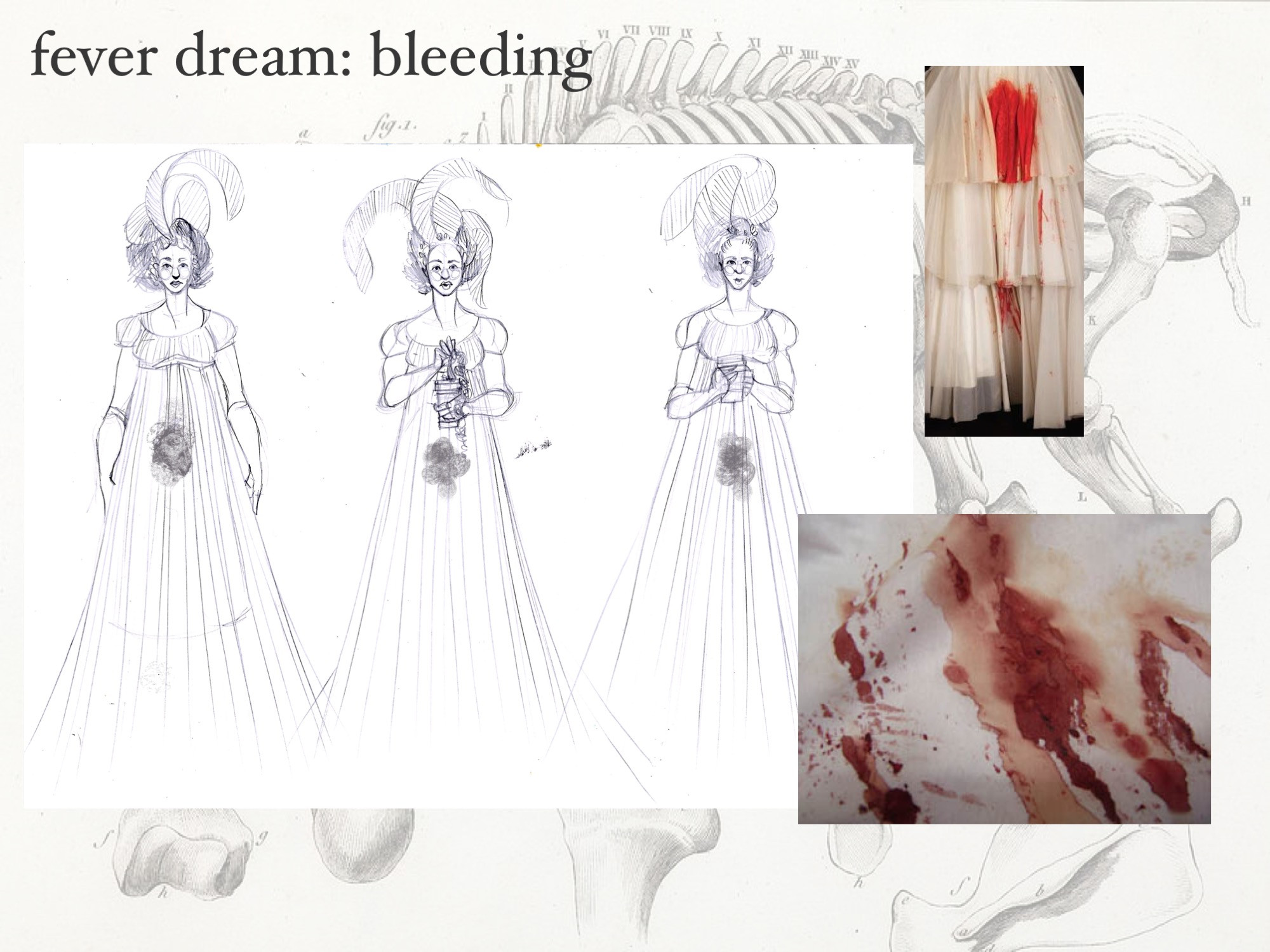 These dresses bled; some distressing references are above.