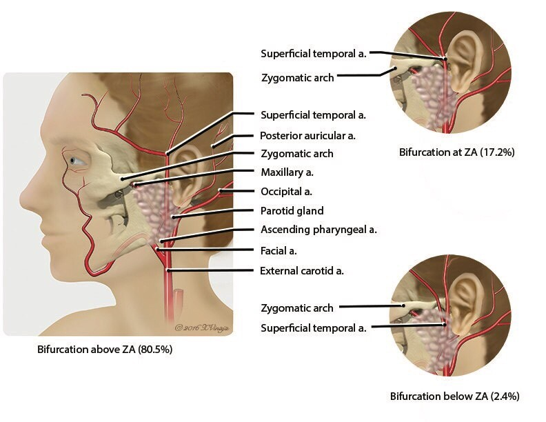 Anatomic variation of the superficial temporal artery