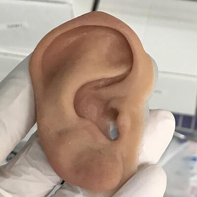Clinical auricular prosthetics (WIPS)