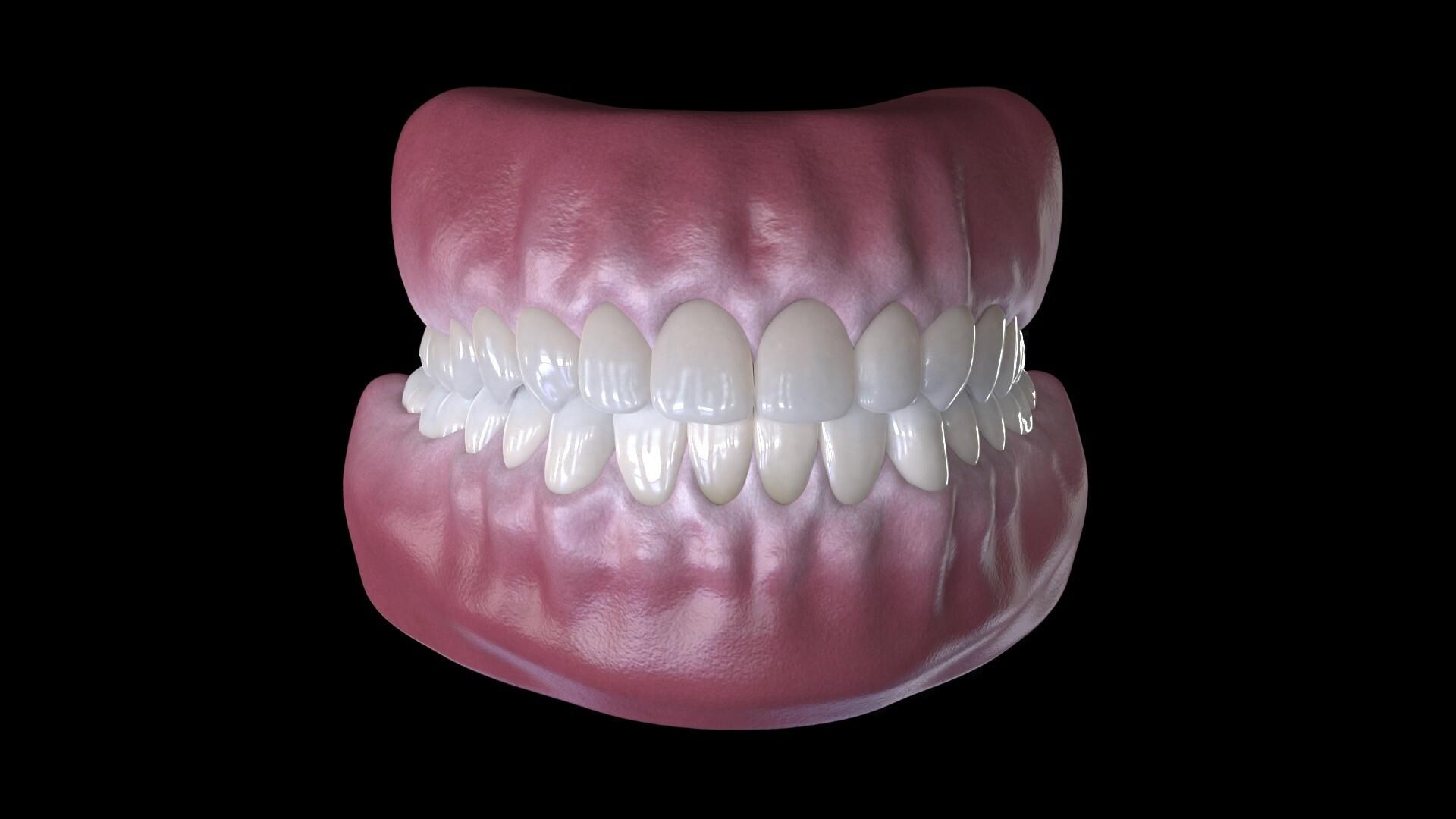 Dental Models of Gums and Teeth