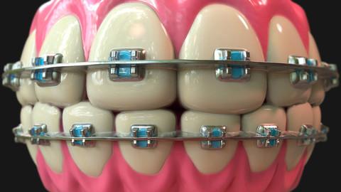 Goofy teeth - Substance Designer