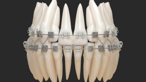 Teeth 3D Print and Render.