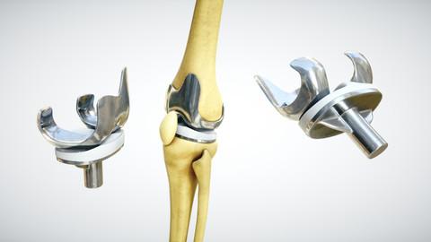 Knee endoprosthesis
